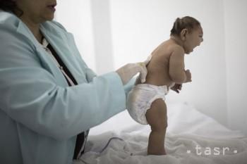 V Barcelone sa narodilo dieťa s príznakmi mikrocefálie