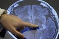 Inovatívny čin roka zvýši počet diagnostikovaných onkopacientov