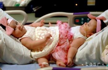Pri operácii v Melbourne oddelili siamské dvojičky