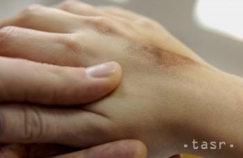 Môžete sa od chorých nakaziť a dostať zápal na koži?